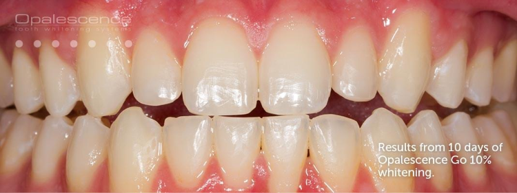 After shot of teeth whitening with Opalescence Go
