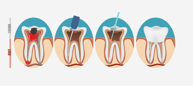 root_canal_therapy_Maitland